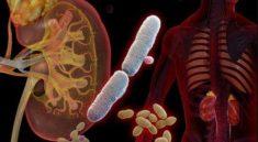 bệnh nhân nhiễm trùng tiểu